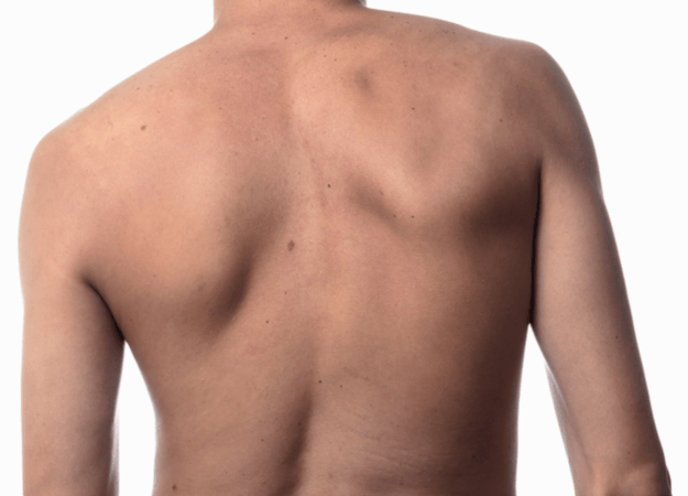 Scoliose-soorten-625x450